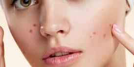 Acne behandeling Sprundel